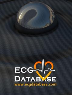 ECG database