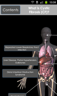 an overview of cystic fibrosis