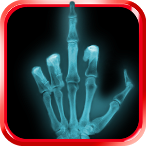 X-ray, scanner