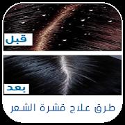وصفات علاج قشرة الشعر روووعة بدون نت