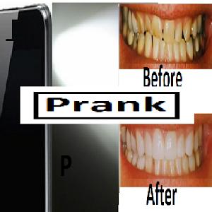 Teeth Whitening torch prank