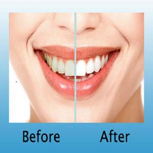 Teeth Whitening DIY teeth videos your