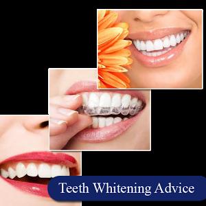 Teeth Whitening Advice