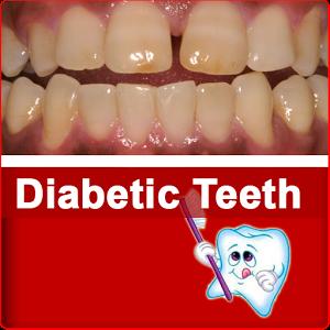Diabetic Teeth fra teeth