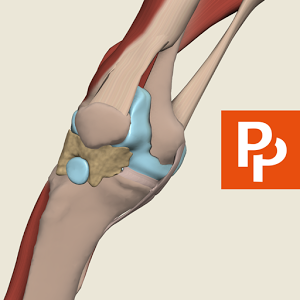 Knee: 3D RT - Sub