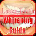 Laser Teeth Whitening Guide