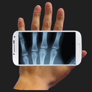 X-ray Cam Prank lite prank