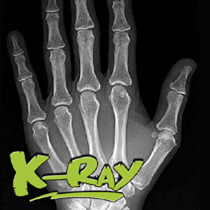 X-Ray Scanner Photos