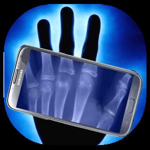 X-Ray Scanner Prank euler prank scanner