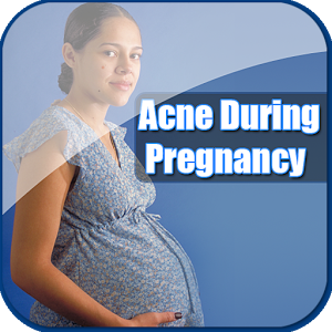 Free Acne In Pregnancy Guide