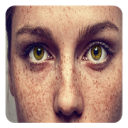 How to get ride of Freckles (Guide)