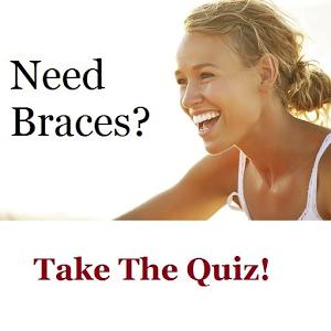 Straight Teeth Quiz
